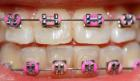My New Braces