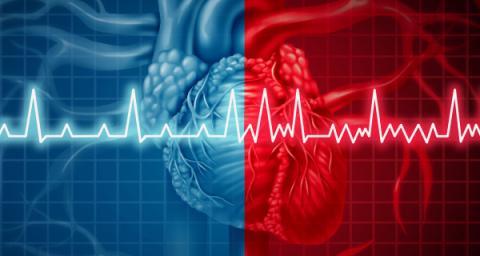 afib cardioversion experience