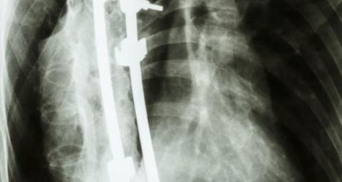 scoliosis surgery death sentence