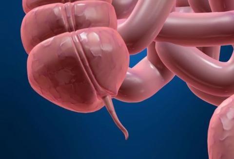 ruptured appendix story