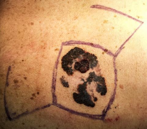 melanoma personal story