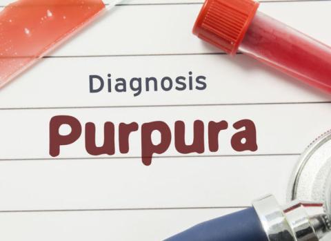 ITP Idiopathic thrombocytopenic purpura personal story