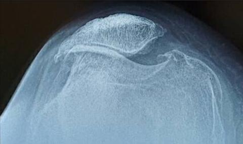 personal story tibial tubercle avulsion